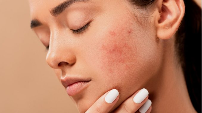 Acne Patches Do They Really Work